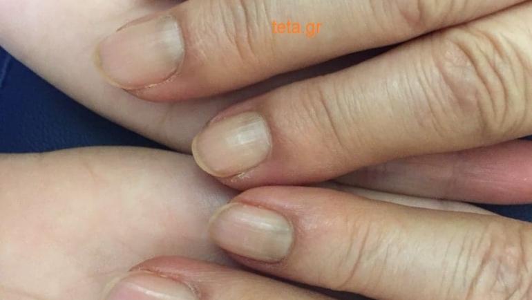 Διαταραχές  δέρματος και νυχιών από χημειοθεραπείες – Σωστή περιποίηση