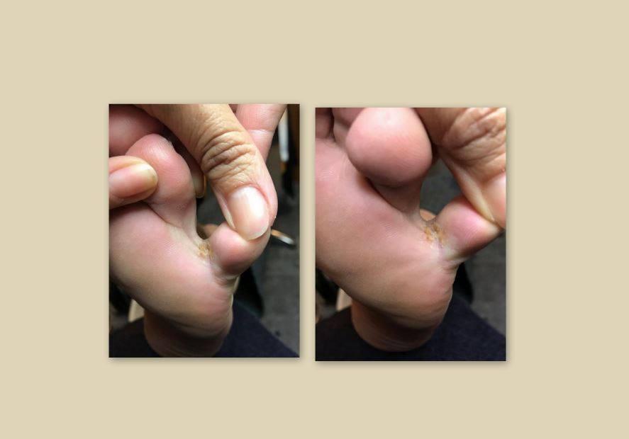 Μύκητες στα πόδια λόγω υγρασίας! Ένα συχνό φαινόμενο που πρέπει να προσέξεις!