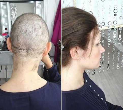 Απώλεια μαλλιών ή αλωπεκία μετά από χημειοθεραπείες; Ελάτε σε ένα ΤBS