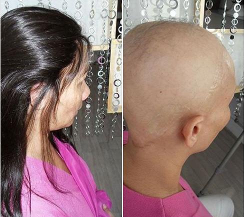 Απώλεια μαλλιών ή αλωπεκία μετά από χημειοθεραπείες; Αντιμετωπίστε το!