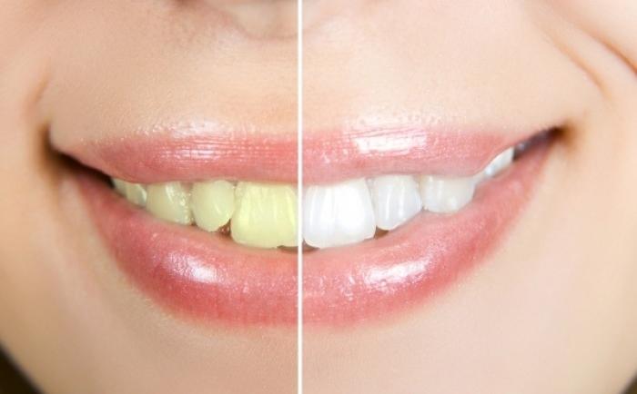 Πιο λευκά δόντια με φυσικούς τρόπους