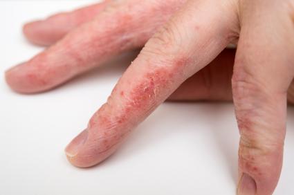 Εκζέματα: Βοηθήστε το δέρμα σας με φυσικό τρόπο