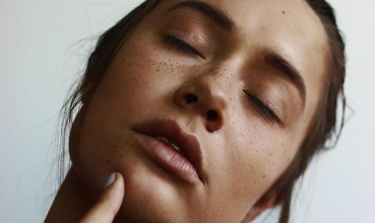 Skin Purge: Τι είναι και πώς μπορείς να το αντιμετωπίσεις