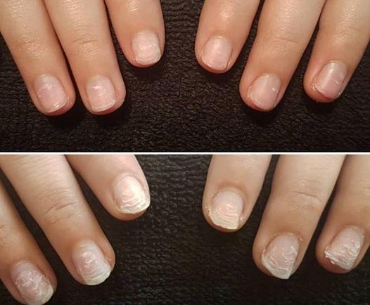 Κατεστραμμένα νύχια; Η λύση είναι IBX Repair