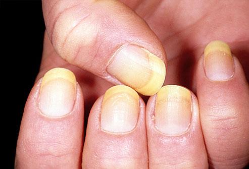 Κίτρινα νύχια: Τι δηλώνει το χρώμα για την υγεία σας