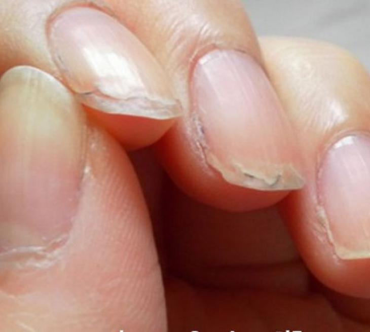 Το λάθος που κάνεις στο μανικιούρ και ξεφλουδίζουν τα νύχια σου