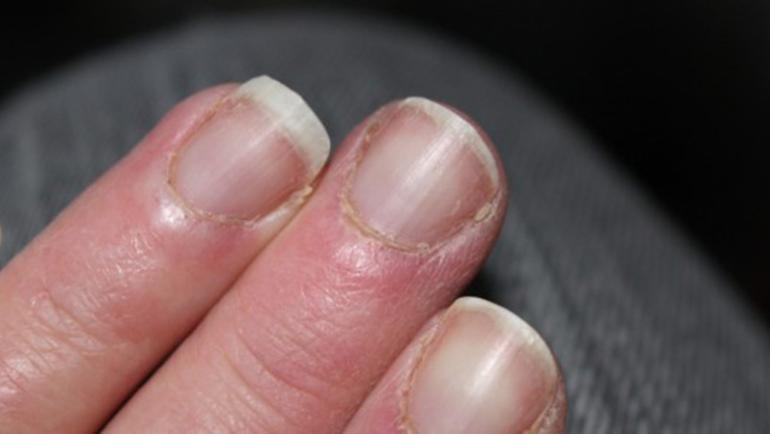 Λύκος: Πώς τον μαρτυρούν τα νύχια σας;