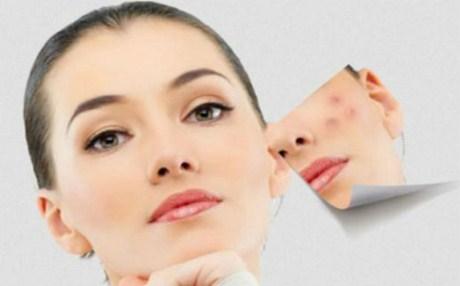 Αντιβακτηριδιακή μάσκα κατά της ακμής